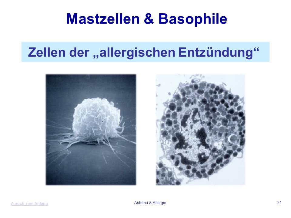 "Zurück zum Anfang Asthma & Allergie21 Mastzellen & Basophile Zellen der ""allergischen Entzündung"""