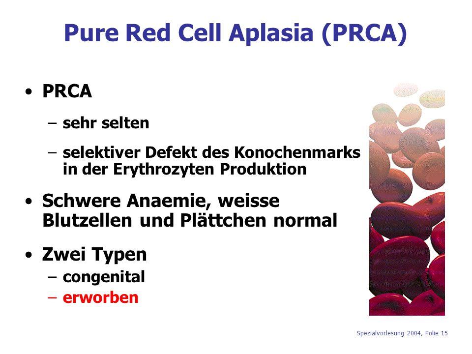 Spezialvorlesung 2004, Folie 15 Pure Red Cell Aplasia (PRCA) PRCA –sehr selten –selektiver Defekt des Konochenmarks in der Erythrozyten Produktion Sch