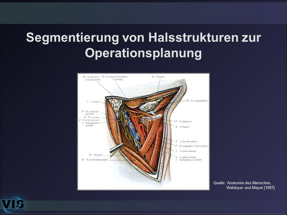 Segmentierung von Halsstrukturen zur Operationsplanung Quelle: Anatomie des Menschen, Waldeyer und Mayet [1987]