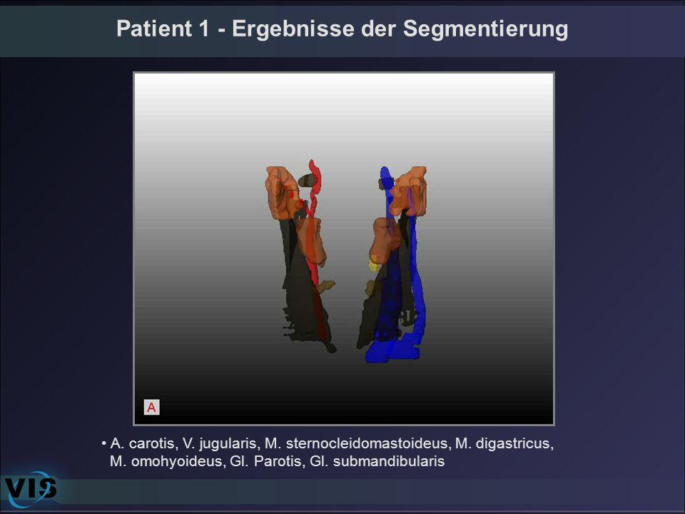 Patient 1 - Ergebnisse der Segmentierung A. carotis, V. jugularis, M. sternocleidomastoideus, M. digastricus, M. omohyoideus, Gl. Parotis, Gl. submand