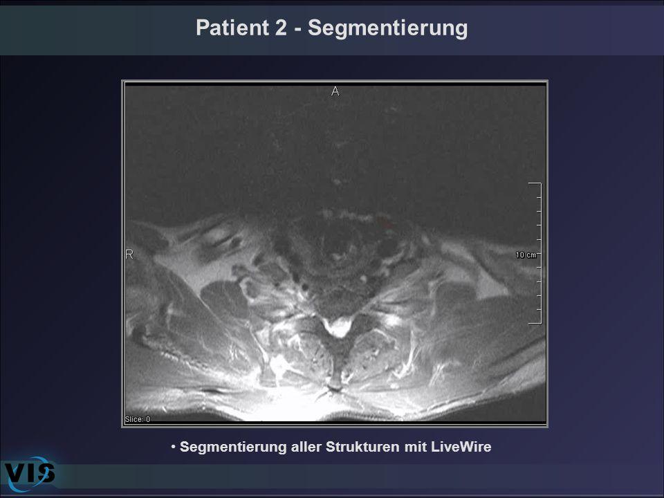Patient 2 - Segmentierung Segmentierung aller Strukturen mit LiveWire