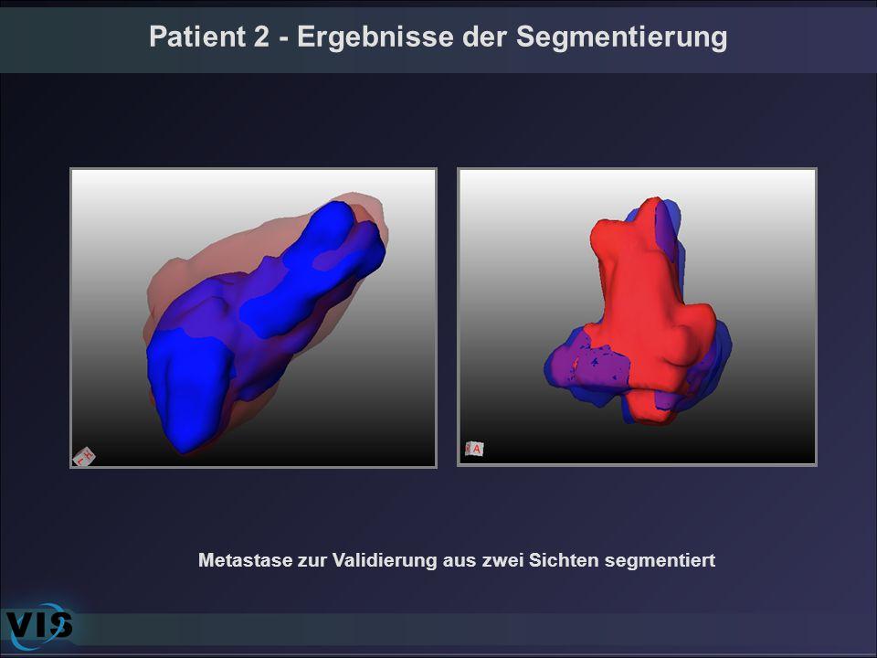 Patient 2 - Ergebnisse der Segmentierung Metastase zur Validierung aus zwei Sichten segmentiert