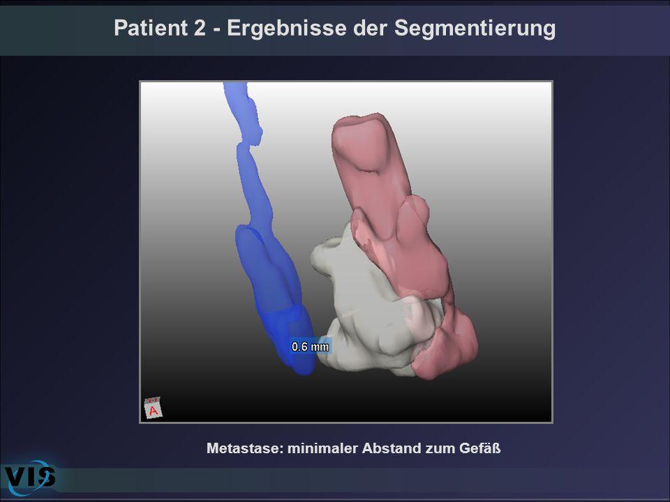 Patient 2 - Ergebnisse der Segmentierung Metastase: minimaler Abstand zum Gefäß