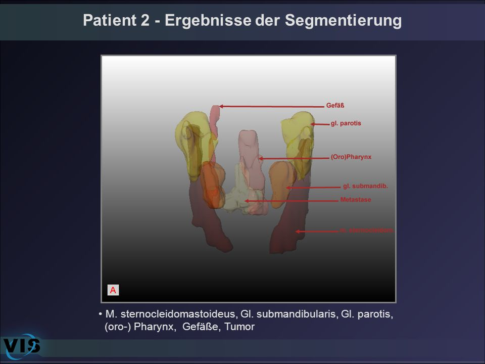 Patient 2 - Ergebnisse der Segmentierung M. sternocleidomastoideus, Gl. submandibularis, Gl. parotis, (oro-) Pharynx, Gefäße, Tumor