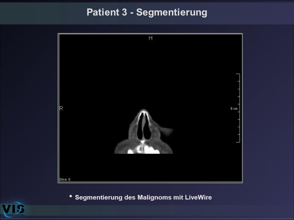 Patient 3 - Segmentierung Segmentierung des Malignoms mit LiveWire
