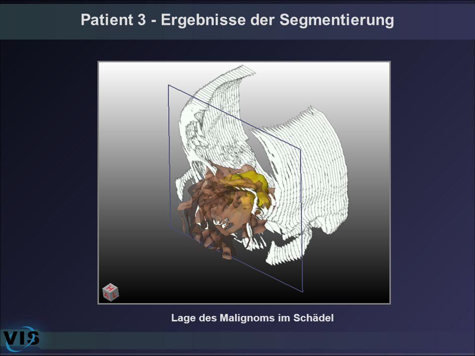 Lage des Malignoms im Schädel Patient 3 - Ergebnisse der Segmentierung