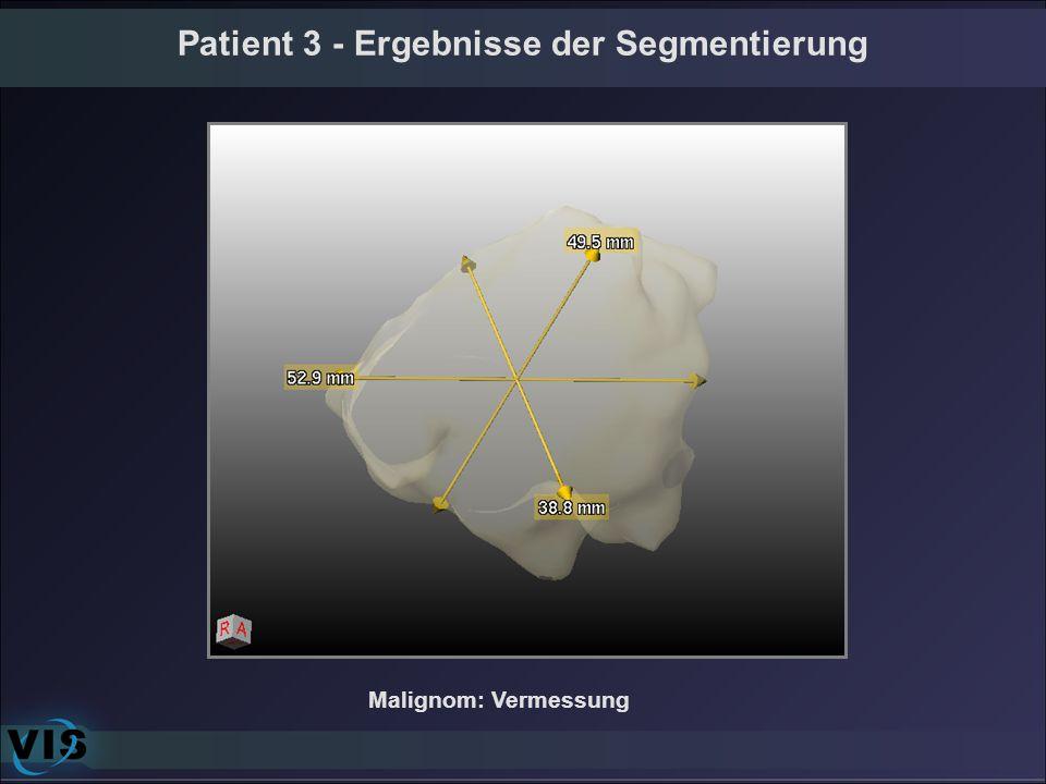 Patient 3 - Ergebnisse der Segmentierung Malignom: Vermessung