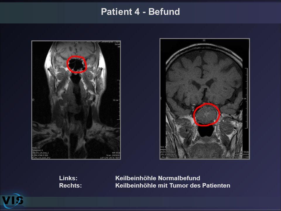 Patient 4 - Befund Links: Keilbeinhöhle Normalbefund Rechts: Keilbeinhöhle mit Tumor des Patienten
