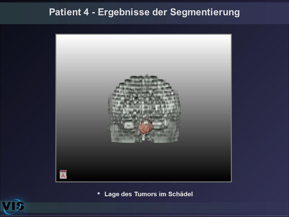 Patient 4 - Ergebnisse der Segmentierung Lage des Tumors im Schädel
