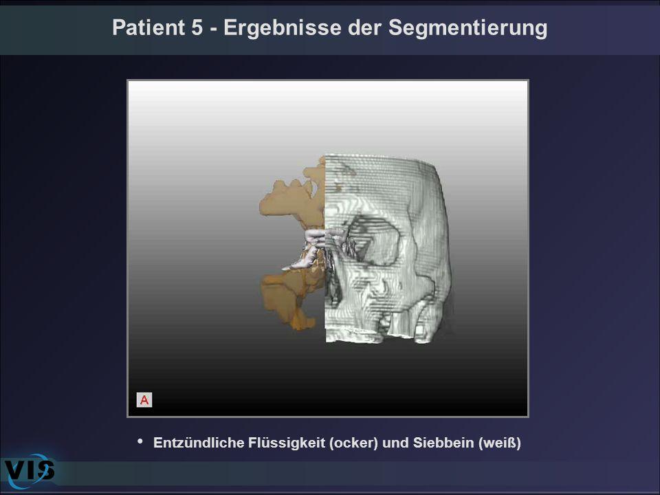 Patient 5 - Ergebnisse der Segmentierung Entzündliche Flüssigkeit (ocker) und Siebbein (weiß)