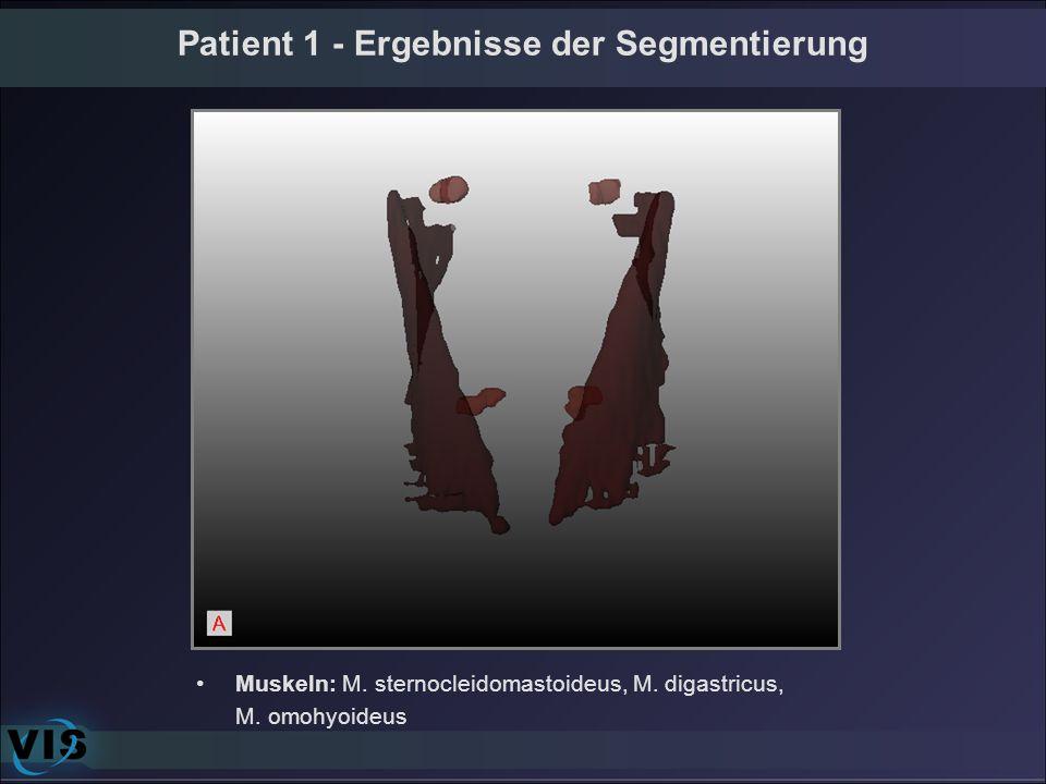 Muskeln: M. sternocleidomastoideus, M. digastricus, M. omohyoideus Patient 1 - Ergebnisse der Segmentierung