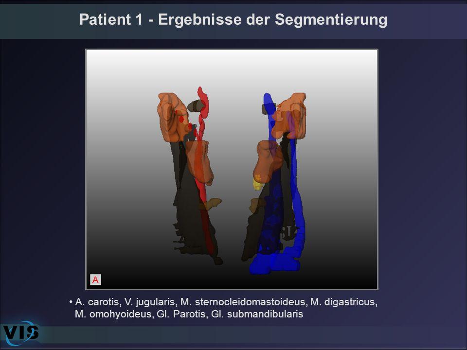 A. carotis, V. jugularis, M. sternocleidomastoideus, M. digastricus, M. omohyoideus, Gl. Parotis, Gl. submandibularis Patient 1 - Ergebnisse der Segme