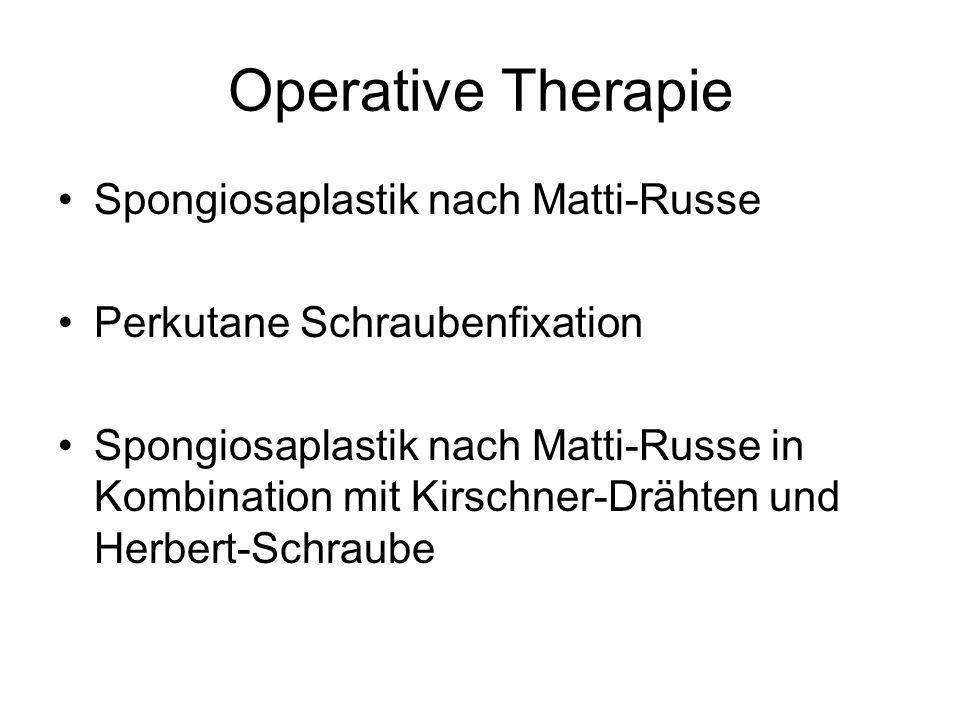 Operative Therapie Spongiosaplastik nach Matti-Russe Perkutane Schraubenfixation Spongiosaplastik nach Matti-Russe in Kombination mit Kirschner-Drähte