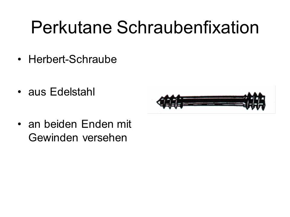 Perkutane Schraubenfixation Herbert-Schraube aus Edelstahl an beiden Enden mit Gewinden versehen