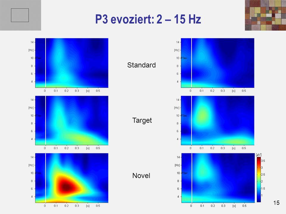 15 P3 evoziert: 2 – 15 Hz Novel Target Standard [  V]