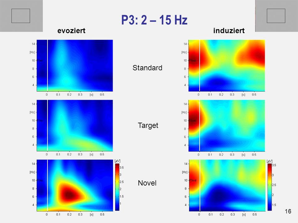 16 P3: 2 – 15 Hz Novel Target Standard evoziertinduziert [  V]