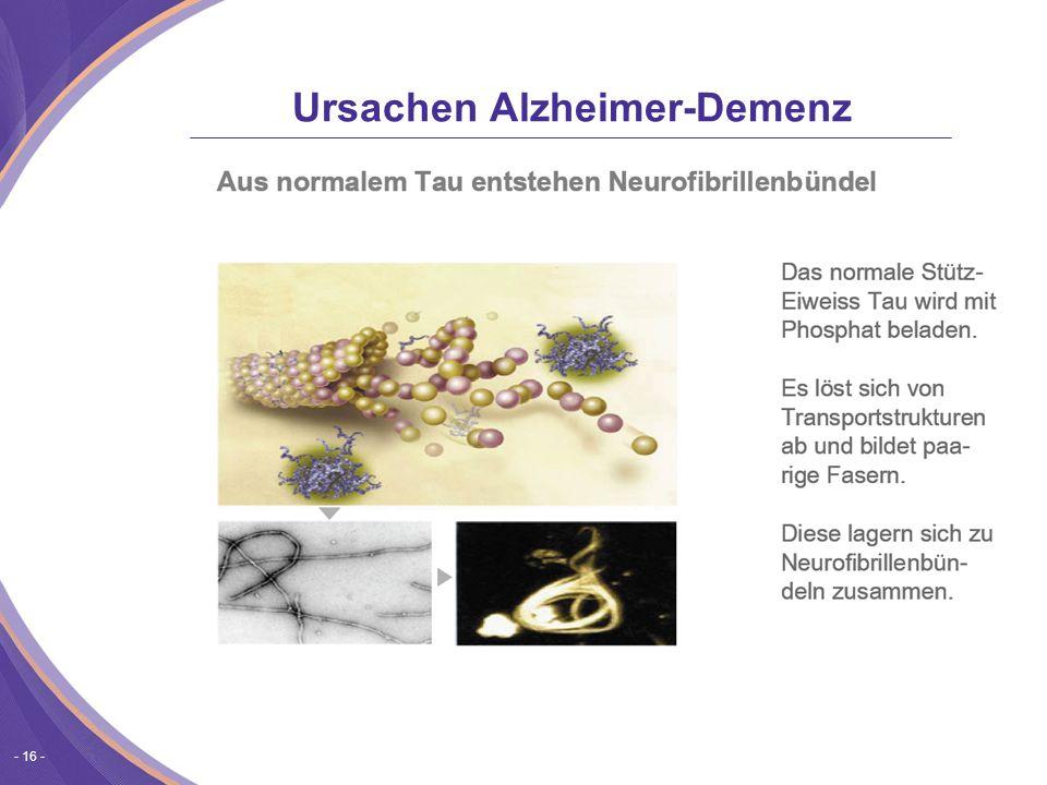 - 16 - Ursachen Alzheimer-Demenz