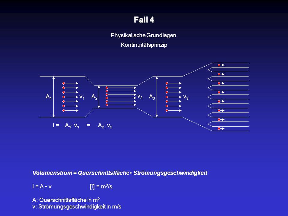 Fall 4 Physikalische Grundlagen Kontinuitätsprinzip A1A1 A2A2 A3A3 v2v2 v1v1 v3v3 Volumenstrom = Querschnittsfläche Strömungsgeschwindigkeit I = A v[I