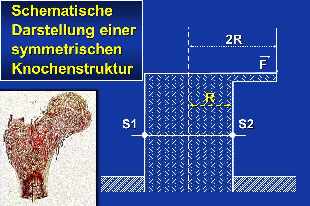2R F S1S2 R Schematische Schematische Darstellung einer Darstellung einer symmetrischen symmetrischen Knochenstruktur Knochenstruktur