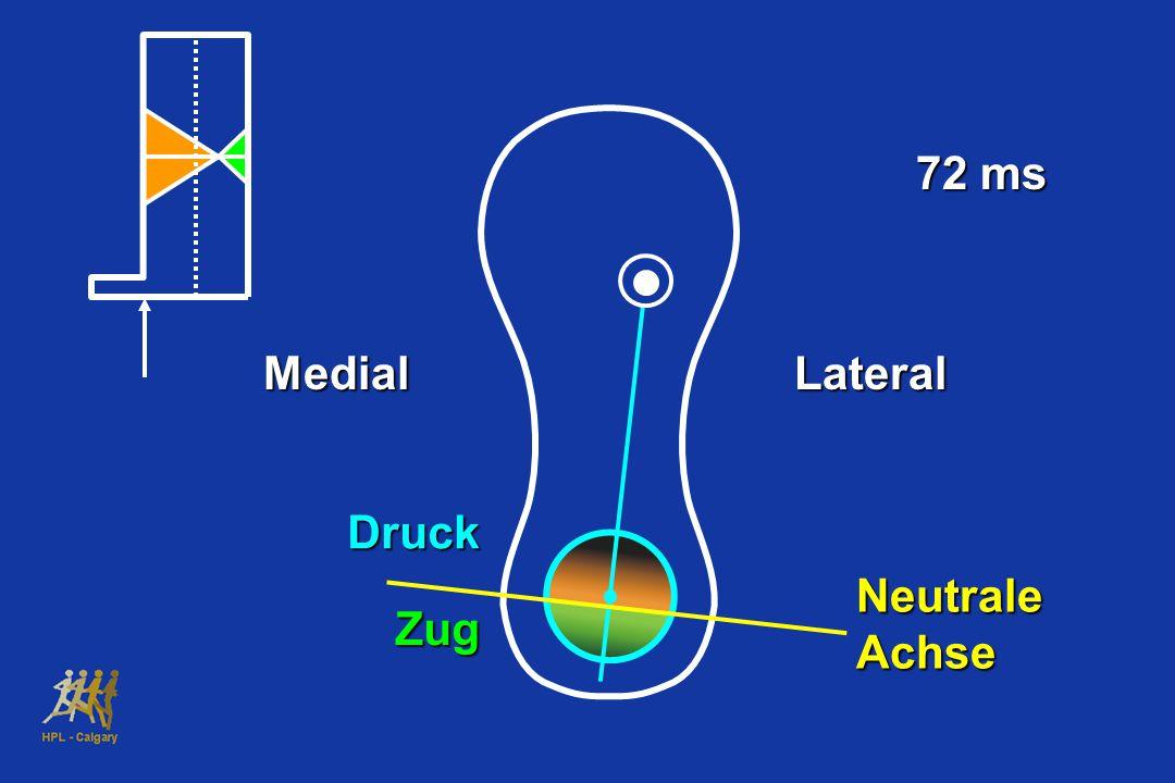 72 ms MedialLateral Druck Zug Neutrale Achse