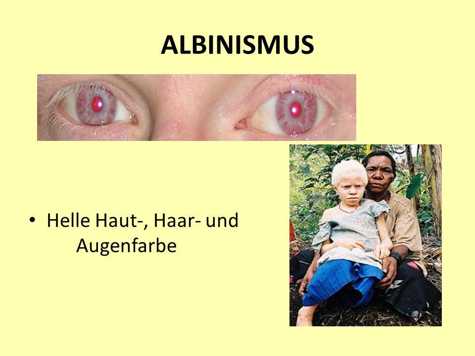 ALBINISMUS Helle Haut-, Haar- und Augenfarbe