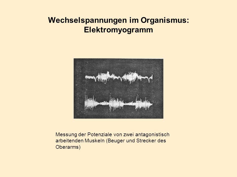 Wechselspannungen im Organismus: Elektromyogramm Messung der Potenziale von zwei antagonistisch arbeitenden Muskeln (Beuger und Strecker des Oberarms)