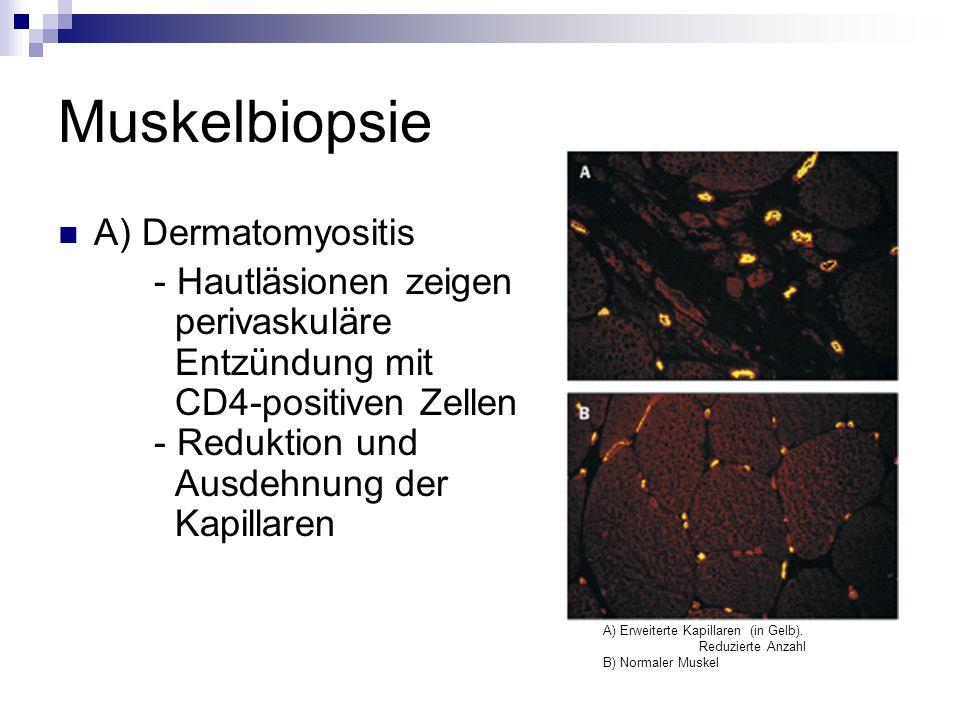 A) Dermatomyositis - Hautläsionen zeigen perivaskuläre Entzündung mit CD4-positiven Zellen - Reduktion und Ausdehnung der Kapillaren A) Erweiterte Kapillaren (in Gelb).