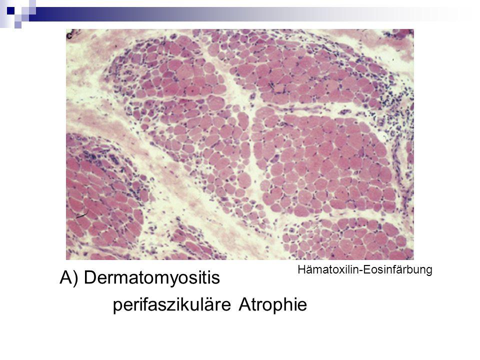 A) Dermatomyositis perifaszikuläre Atrophie Hämatoxilin-Eosinfärbung
