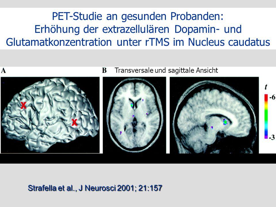 Der Strafella et al., J Neurosci 2001; 21:157 Lokalisation Stimulationsorte Veränderung der Aktivität im linken Nucleus Caudatus PET-Studie an gesunde