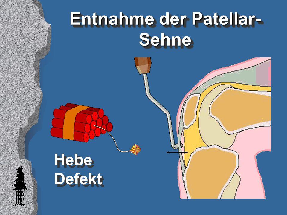 ZusammenfassungZusammenfassung l Femorales und tibiales Sackloch l Sehnen-Entnahme mit anhaftendem Knochenzapfen ) l Direkte Verankerung der Sehne mit atraumatischer biodegradierbarer Schraube and den anatomischen VKB Insertionen (anatomische Verankerung)
