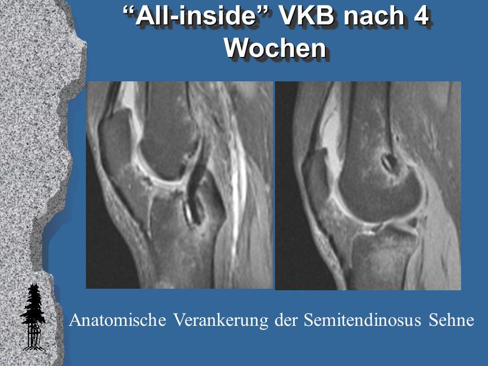 """""""All-inside"""" VKB nach 4 Wochen Anatomische Verankerung der Semitendinosus Sehne"""