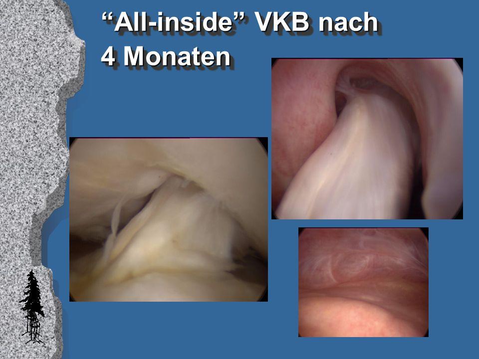 """All-inside"" VKB nach 4 Monaten"