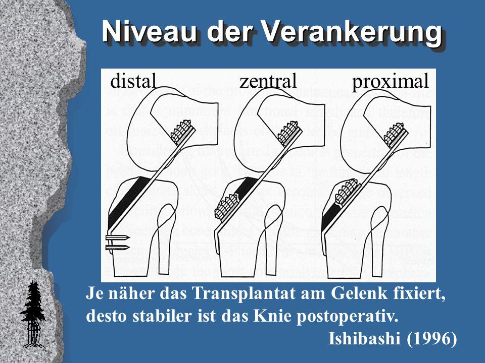 Niveau der Verankerung Je näher das Transplantat am Gelenk fixiert, desto stabiler ist das Knie postoperativ. Ishibashi (1996) distal zentral proximal