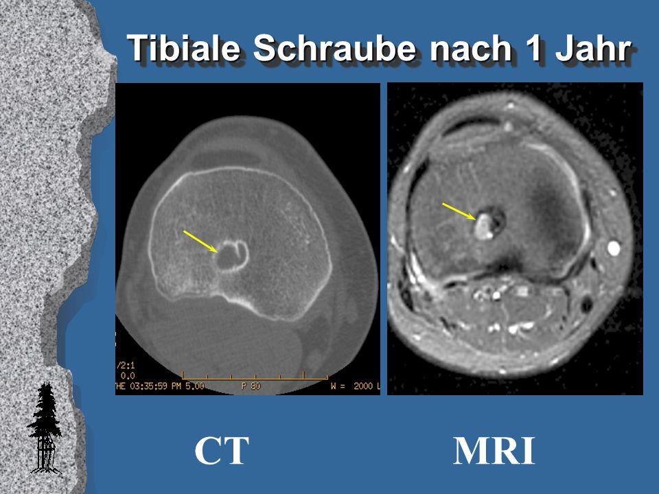 Tibiale Schraube nach 1 Jahr CTMRI