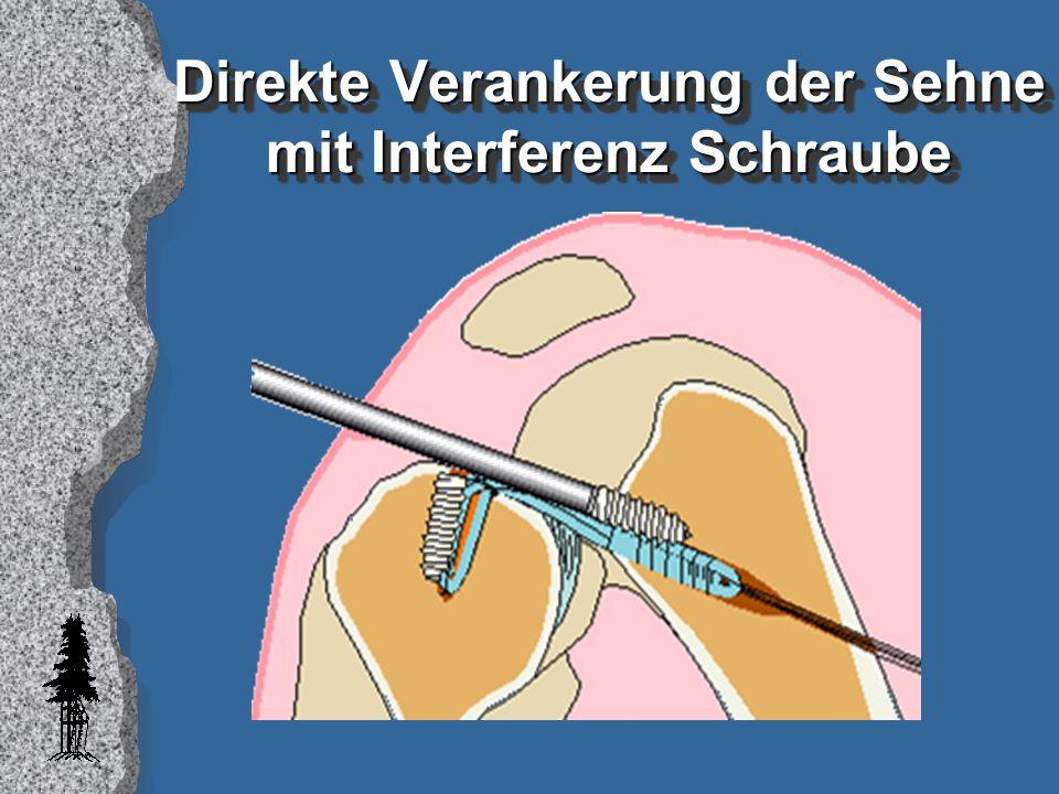 Sehne-Knochen Heilung l publiziert: –Hase - 3 Wochen (Grana, 1994) –Hund - 11 Wochen (Rougraff, 1995) l in Arbeit: – Schaf- 6 Wochen (Weiler.1997) Anatomische Verankerung, PDLLA Schraube MRI, Histologie, Ausreisskraft