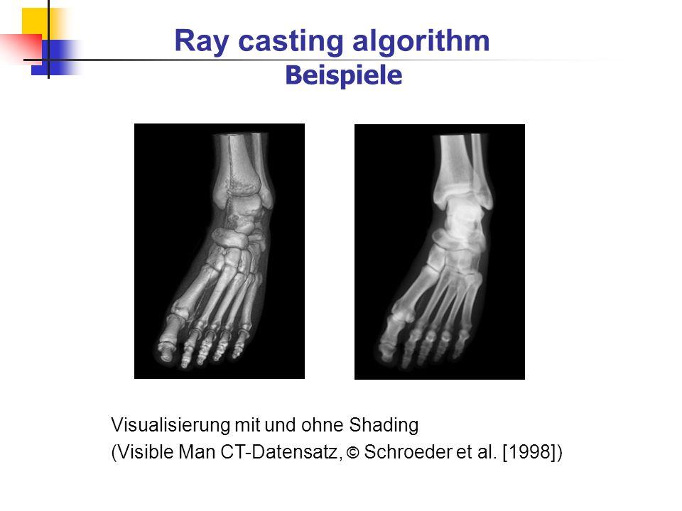 Ray casting algorithm Beispiele Visualisierung mit und ohne Shading (Visible Man CT-Datensatz, © Schroeder et al. [1998])