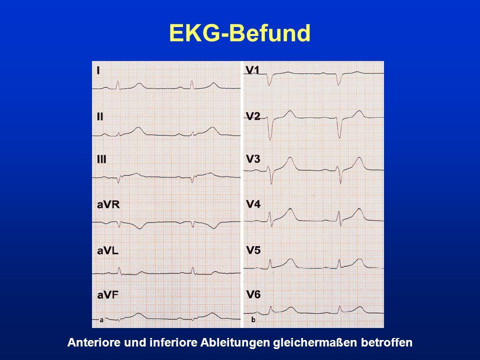 EKG-Befund Anteriore und inferiore Ableitungen gleichermaßen betroffen
