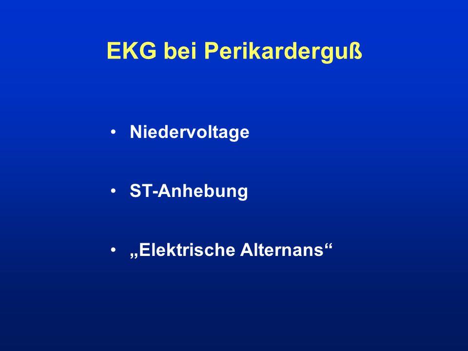 """EKG bei Perikarderguß Niedervoltage ST-Anhebung """"Elektrische Alternans"""""""