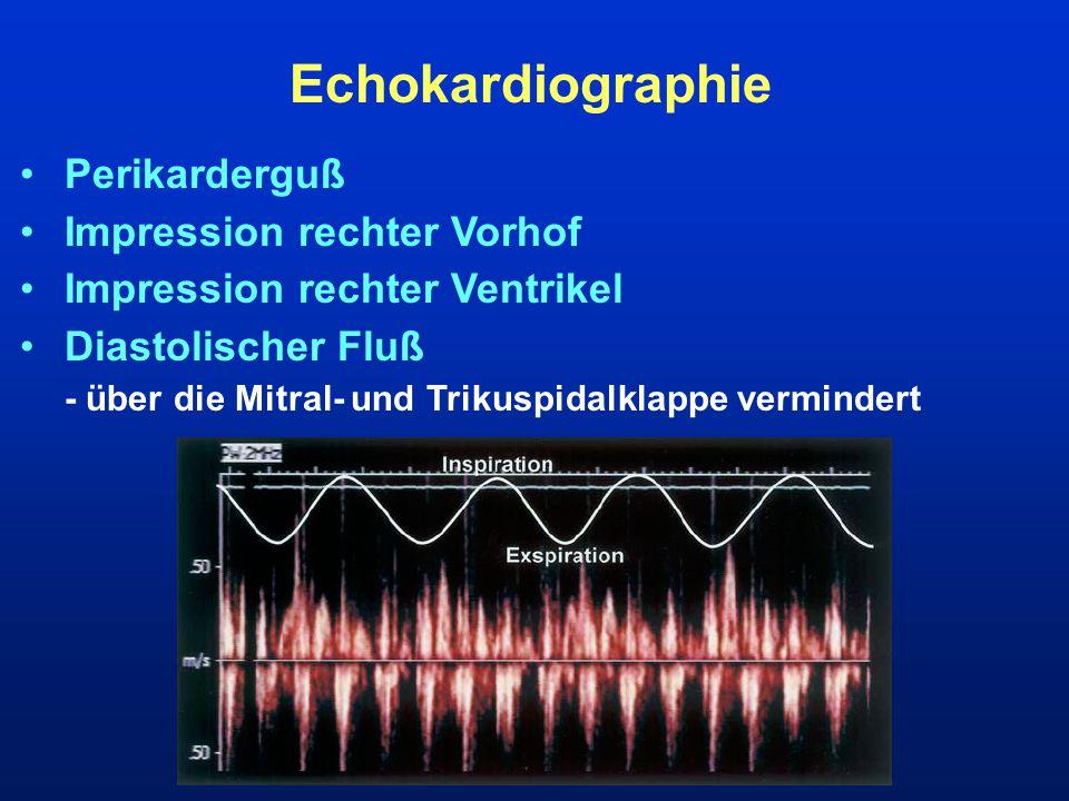 Echokardiographie Perikarderguß Impression rechter Vorhof Impression rechter Ventrikel Diastolischer Fluß - über die Mitral- und Trikuspidalklappe ver