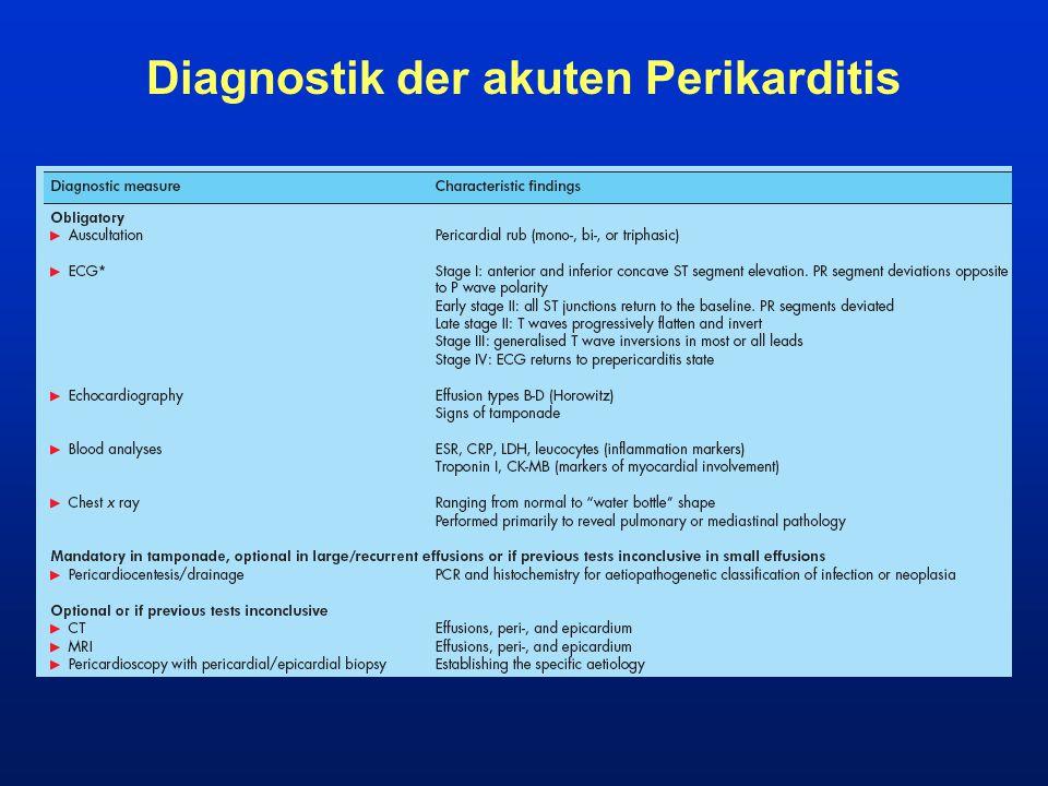 Diagnostik der akuten Perikarditis