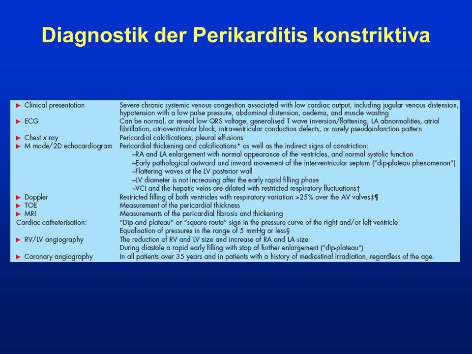Diagnostik der Perikarditis konstriktiva