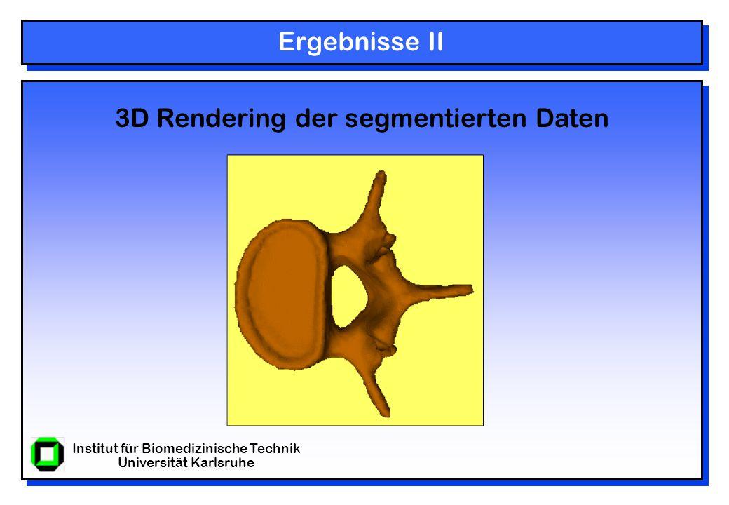 Institut für Biomedizinische Technik Universität Karlsruhe Ergebnisse II 3D Rendering der segmentierten Daten