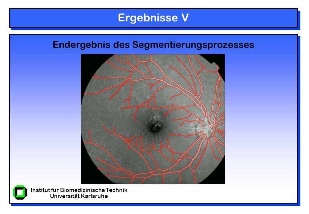 Institut für Biomedizinische Technik Universität Karlsruhe Ergebnisse V Endergebnis des Segmentierungsprozesses
