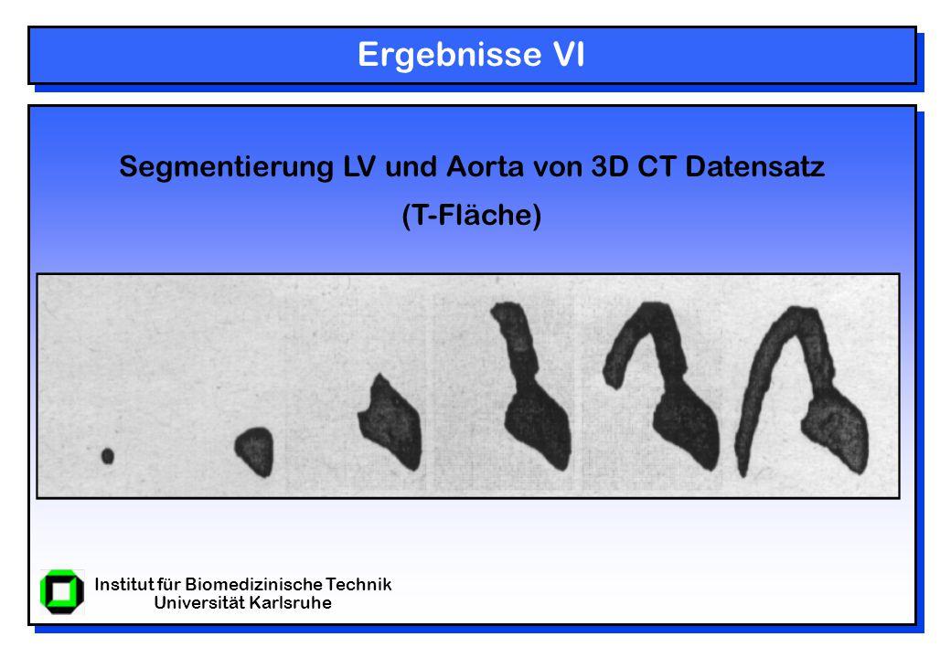Institut für Biomedizinische Technik Universität Karlsruhe Ergebnisse VI Segmentierung LV und Aorta von 3D CT Datensatz (T-Fläche)