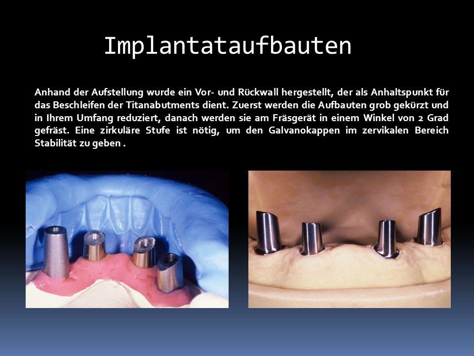 Anhand der Aufstellung wurde ein Vor- und Rückwall hergestellt, der als Anhaltspunkt für das Beschleifen der Titanabutments dient. Zuerst werden die A