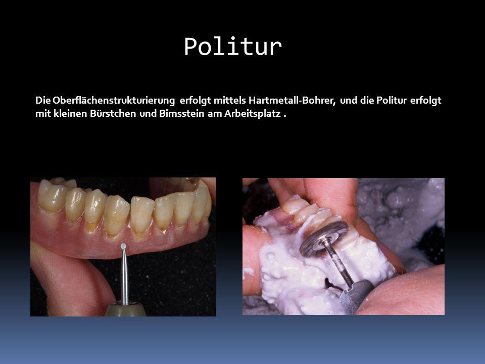 Die Oberflächenstrukturierung erfolgt mittels Hartmetall-Bohrer, und die Politur erfolgt mit kleinen Bürstchen und Bimsstein am Arbeitsplatz. Politur