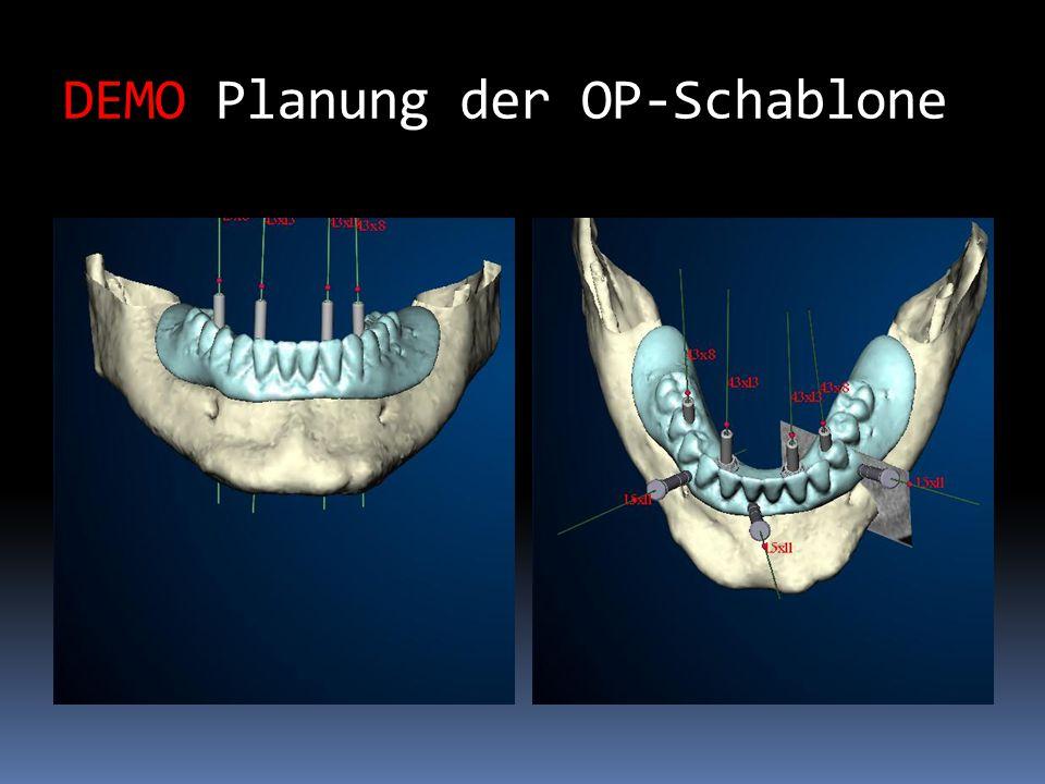 DEMO Grafische Darstellung der OP-Schablone