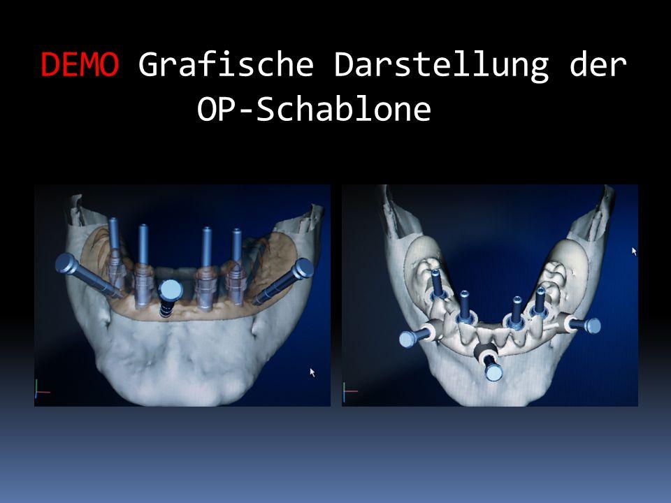 Aufgabenstellung In den zahnlosen Unterkiefer wurden beidseitig regio23/34 und 42/44 zwei Implantate (Typ Camlog) inseriert.