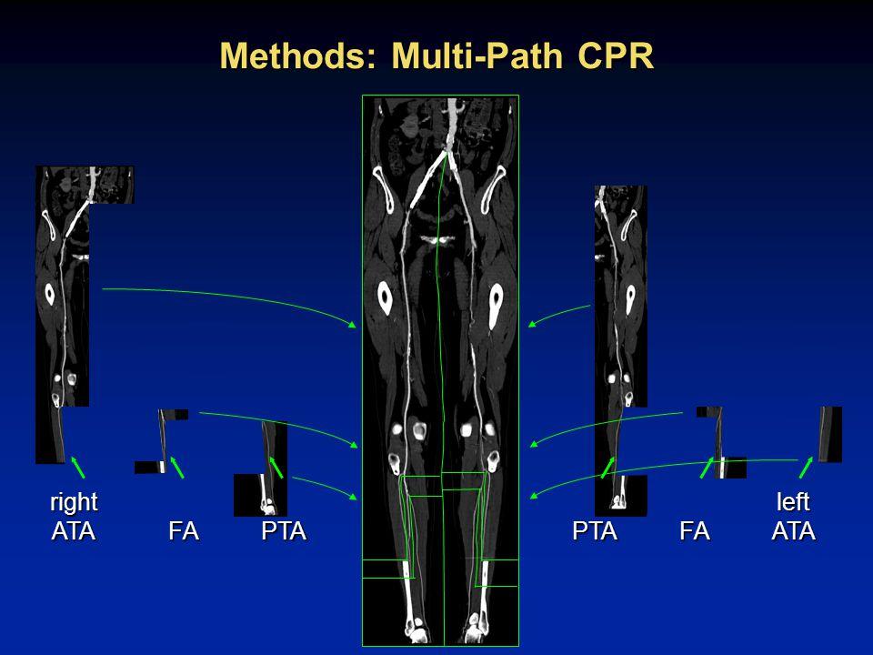 rotating multi-path CPR (rmpCPR) thin-slab MIP CPR D. Fleischmann RSNA 2002