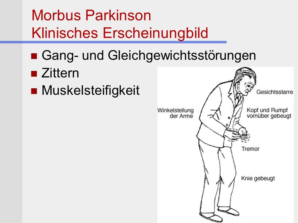 Morbus Parkinson Klinisches Erscheinungbild Gang- und Gleichgewichtsstörungen Zittern Muskelsteifigkeit